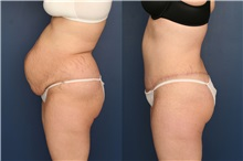 Tummy Tuck After Photo by Ronald Schuster, MD; Lutherville, MD - Case 32390
