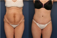 Tummy Tuck Before Photo by Ronald Schuster, MD; Lutherville, MD - Case 32390