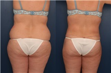Tummy Tuck After Photo by Ronald Schuster, MD; Lutherville, MD - Case 32391