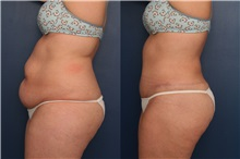 Tummy Tuck Before Photo by Ronald Schuster, MD; Lutherville, MD - Case 32391