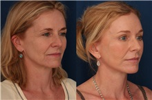 Facelift After Photo by Ronald Schuster, MD; Lutherville, MD - Case 32393