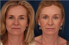 Facelift Before Photo by Ronald Schuster, MD; Lutherville, MD - Case 32393