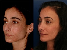 Rhinoplasty After Photo by Ronald Schuster, MD; Lutherville, MD - Case 32394