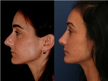 Rhinoplasty Before Photo by Ronald Schuster, MD; Lutherville, MD - Case 32394
