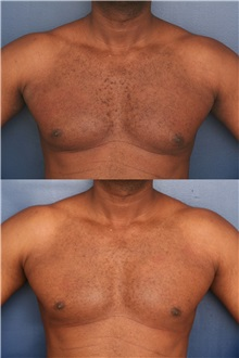 Male Breast Reduction After Photo by Ronald Schuster, MD; Lutherville, MD - Case 32395