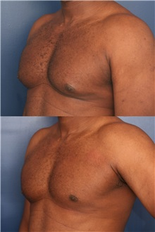 Male Breast Reduction Before Photo by Ronald Schuster, MD; Lutherville, MD - Case 32395