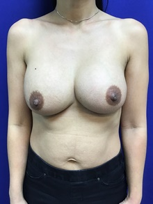 Breast Augmentation After Photo by Sutton Graham, II, MD; Greenville, SC - Case 39055