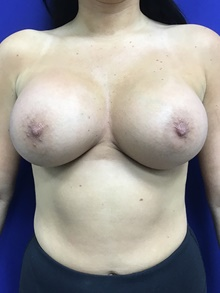 Breast Augmentation After Photo by Sutton Graham, II, MD; Greenville, SC - Case 39076