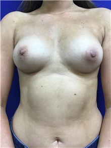 Breast Augmentation Before Photo by Sutton Graham, II, MD; Greenville, SC - Case 39076