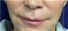 Lip Augmentation / Enhancement Before Photo by Sutton Graham, II, MD; Greenville, SC - Case 40784