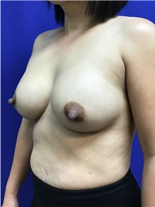 Breast Augmentation After Photo by Sutton Graham, II, MD; Greenville, SC - Case 40785