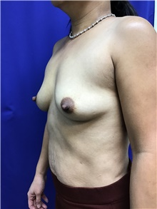 Breast Augmentation Before Photo by Sutton Graham, II, MD; Greenville, SC - Case 40785