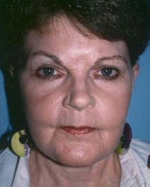 Facelift Picture