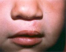 Cleft Lip and Palate Repair After Photo by Dennis Schuster, MD, DDS; Fort Worth, TX - Case 6571