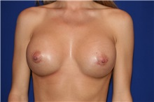 Breast Augmentation After Photo by Joseph Mlakar, MD, FACS; Fort Wayne, IN - Case 29488
