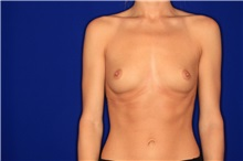 Breast Augmentation Before Photo by Joseph Mlakar, MD, FACS; Fort Wayne, IN - Case 29488
