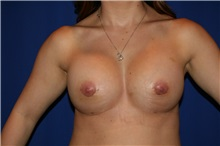 Breast Augmentation After Photo by Joseph Mlakar, MD, FACS; Fort Wayne, IN - Case 29491