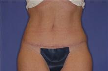 Tummy Tuck After Photo by Joseph Mlakar, MD, FACS; Fort Wayne, IN - Case 29575