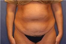 Tummy Tuck Before Photo by Joseph Mlakar, MD, FACS; Fort Wayne, IN - Case 29575
