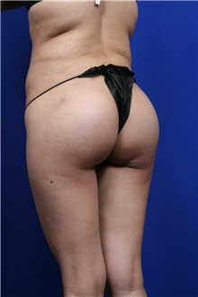 Buttock Lift with Augmentation After Photo by Joseph Mlakar, MD, FACS; Fort Wayne, IN - Case 29582