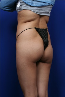 Buttock Lift with Augmentation Before Photo by Joseph Mlakar, MD, FACS; Fort Wayne, IN - Case 29582