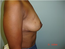 Breast Reduction After Photo by Howard Perofsky, MD; Macon, GA - Case 8532