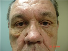 Facelift After Photo by Howard Perofsky, MD; Macon, GA - Case 8541