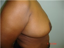 Breast Reduction After Photo by Howard Perofsky, MD; Macon, GA - Case 8573