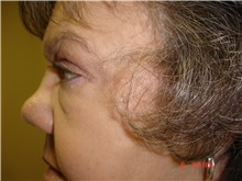Eyelid Surgery After Photo by Howard Perofsky, MD; Macon, GA - Case 8586