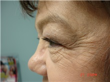 Eyelid Surgery Before Photo by Howard Perofsky, MD; Macon, GA - Case 8586