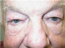 Eyelid Surgery Before Photo by Howard Perofsky, MD; Macon, GA - Case 8644