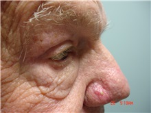 Eyelid Surgery After Photo by Howard Perofsky, MD; Macon, GA - Case 8644