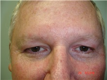 Facelift After Photo by Howard Perofsky, MD; Macon, GA - Case 9333
