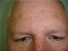 Facelift Before Photo by Howard Perofsky, MD; Macon, GA - Case 9333