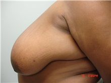 Breast Reduction Before Photo by Howard Perofsky, MD; Macon, GA - Case 9462