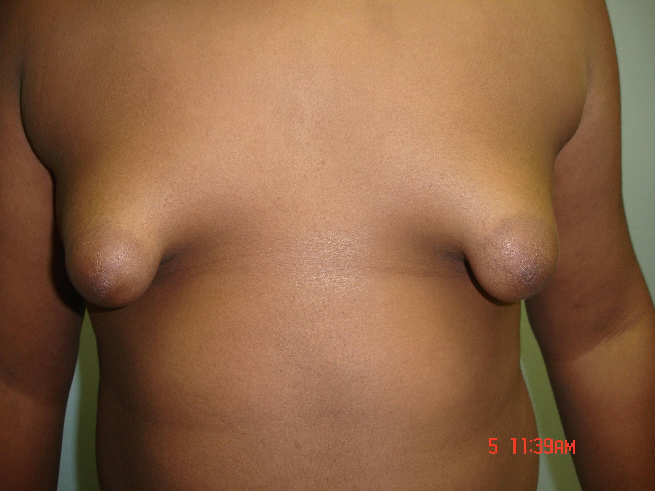 Male Breast Reduction Picture