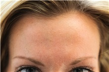 Botulinum Toxin After Photo by Joseph O'Connell, MD; Westport, CT - Case 31000
