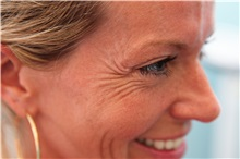 Botulinum Toxin Before Photo by Joseph O'Connell, MD; Westport, CT - Case 31000