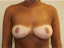 Breast Reduction After Photo by Joseph O'Connell, MD; Westport, CT - Case 31001