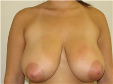 Breast Reduction Before Photo by Joseph O'Connell, MD; Westport, CT - Case 31001