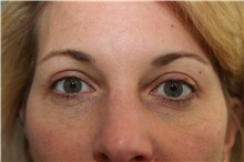 Eyelid Surgery After Photo by Joseph O'Connell, MD; Westport, CT - Case 31002
