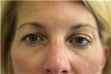 Eyelid Surgery Before Photo by Joseph O'Connell, MD; Westport, CT - Case 31002
