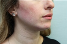 Dermal Fillers After Photo by Joseph O'Connell, MD; Westport, CT - Case 31006