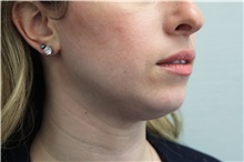 Dermal Fillers Before Photo by Joseph O'Connell, MD; Westport, CT - Case 31006