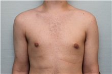 Male Breast Reduction After Photo by Joseph O'Connell, MD; Westport, CT - Case 31008