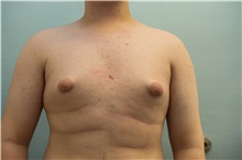 Male Breast Reduction Before Photo by Joseph O'Connell, MD; Westport, CT - Case 31008