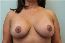 Breast Lift After Photo by Joseph O'Connell, MD; Westport, CT - Case 31010