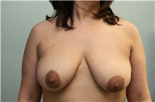 Breast Lift Before Photo by Joseph O'Connell, MD; Westport, CT - Case 31010