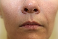 Dermal Fillers After Photo by Joseph O'Connell, MD; Westport, CT - Case 31012