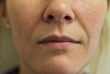 Dermal Fillers Before Photo by Joseph O'Connell, MD; Westport, CT - Case 31012